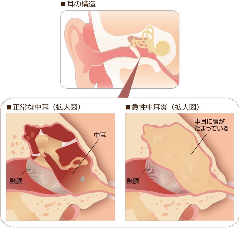 と は 中耳炎 大人の難治性中耳炎「好酸球性中耳炎」