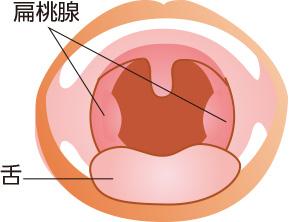 腺 急性 炎 と は 扁桃