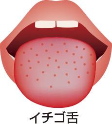 いちご舌 痛み