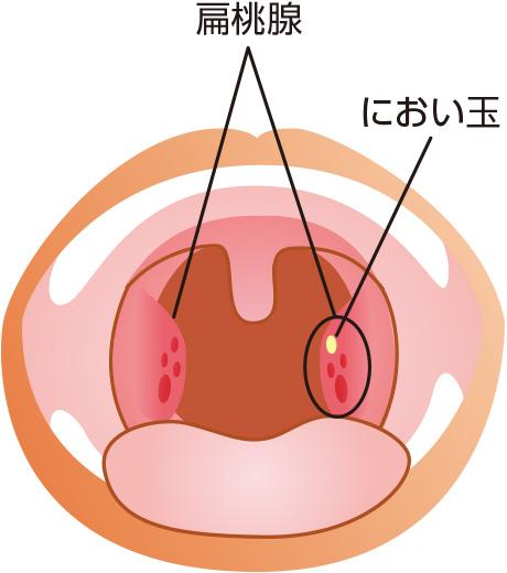扁桃 腺 匂い 玉